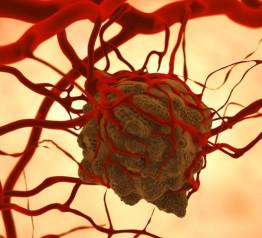 tumore-cronico